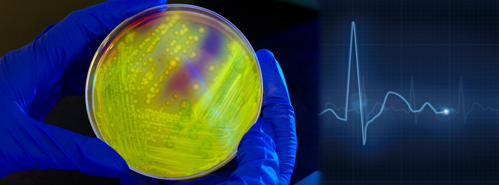 C.diff petri dish